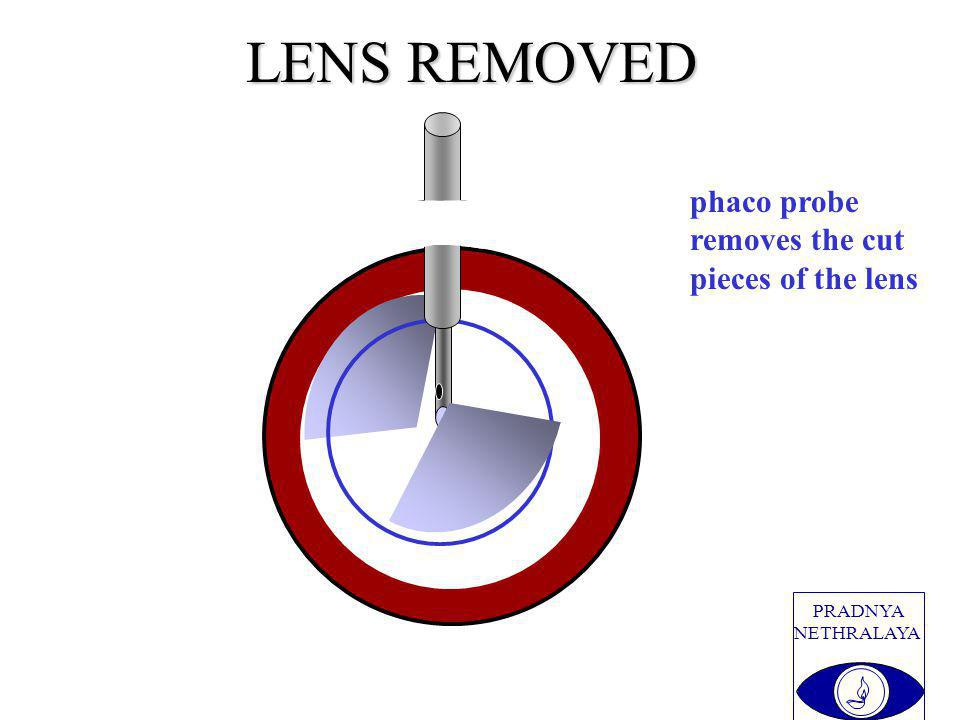 PRADNYA NETHRALAYA LENS REMOVED phaco probe removes the cut pieces of the lens