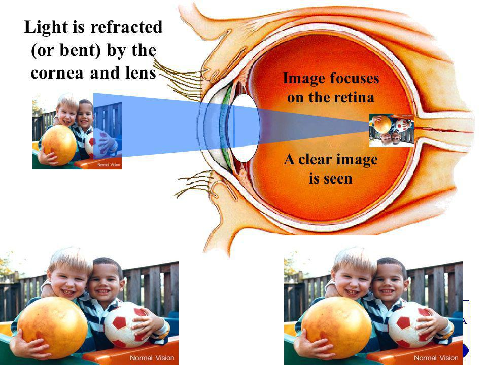 PRADNYA NETHRALAYA Light is refracted (or bent) by the cornea and lens Image focuses on the retina A clear image is seen
