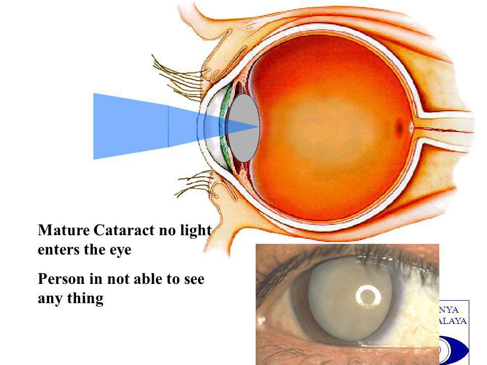 PRADNYA NETHRALAYA Mature Cataract no light enters the eye Person in not able to see any thing