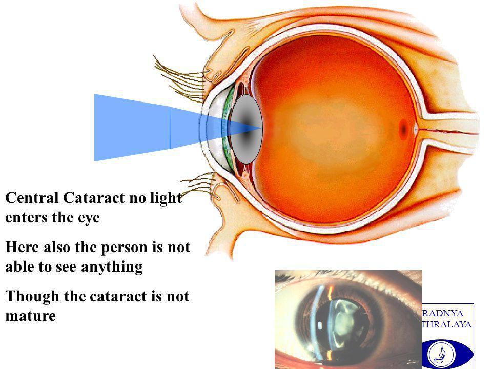 PRADNYA NETHRALAYA Central Cataract no light enters the eye Here also the person is not able to see anything Though the cataract is not mature