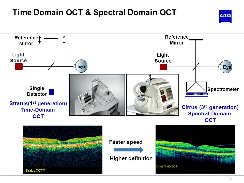 Time Domain OCT & Spectral Domain OCT 35 Stratus OCT Eye Light Source Reference Mirror Single Detector Stratus(1 st generation) Time-Domain OCT Eye Li