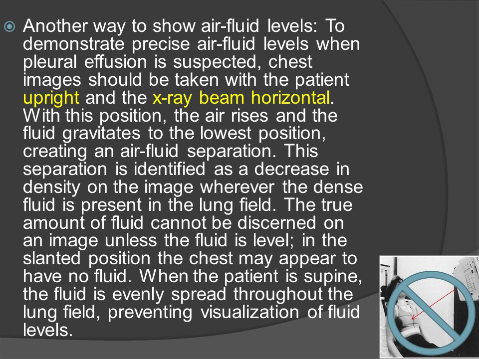 Another way to show air-fluid levels: To demonstrate precise air-fluid levels when pleural effusion is suspected, chest images should be taken with th