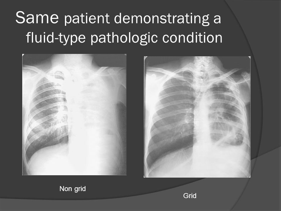 Same patient demonstrating a fluid-type pathologic condition Non grid Grid