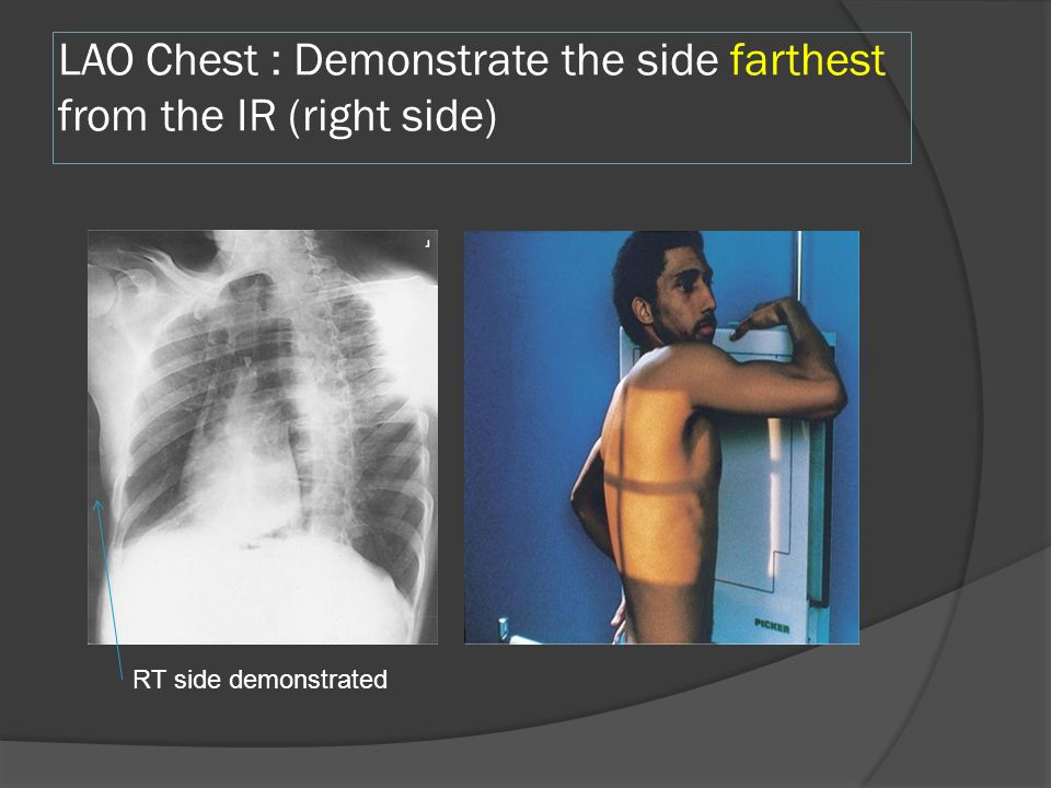 LAO Chest : Demonstrate the side farthest from the IR (right side) RT side demonstrated