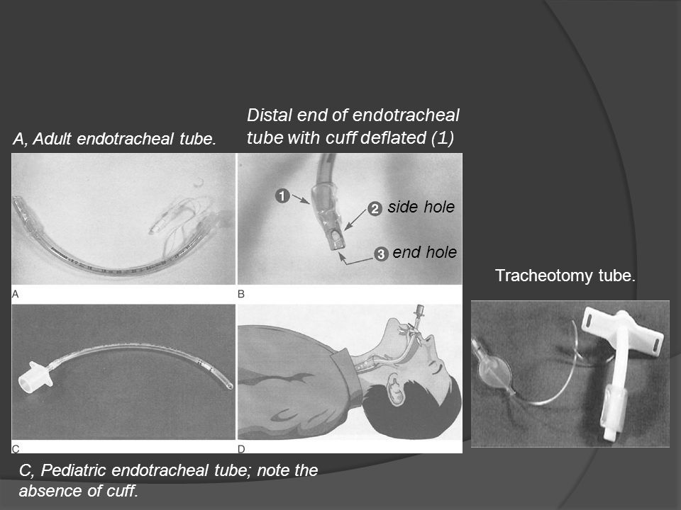 Distal end of endotracheal tube with cuff deflated (1) C, Pediatric endotracheal tube; note the absence of cuff. A, Adult endotracheal tube. side hole