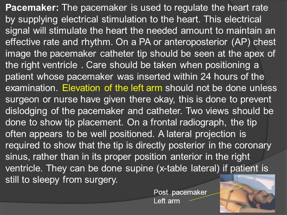 Pacemaker: The pacemaker is used to regulate the heart rate by supplying electrical stimulation to the heart. This electrical signal will stimulate th
