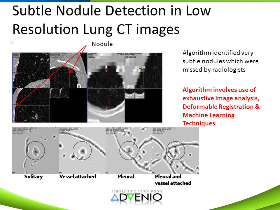 Subtle Nodule Detection in Low Resolution Lung CT images 21 Algorithm identified very subtle nodules which were missed by radiologists Algorithm invol