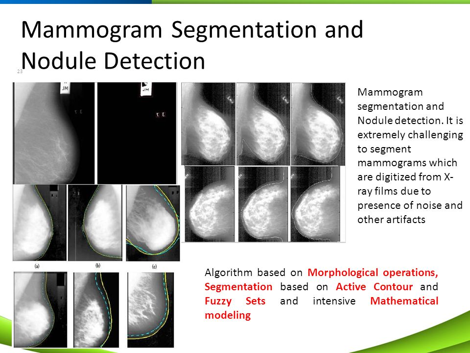 Mammogram Segmentation and Nodule Detection 23 Algorithm based on Morphological operations, Segmentation based on Active Contour and Fuzzy Sets and in