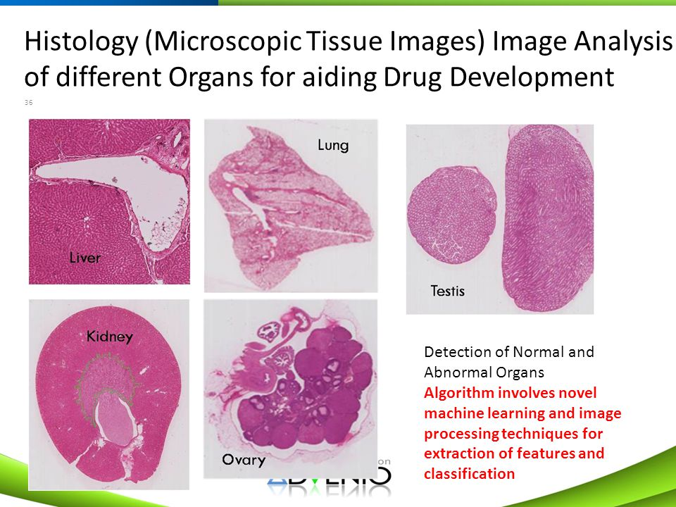 Histology (Microscopic Tissue Images) Image Analysis of different Organs for aiding Drug Development 36 Detection of Normal and Abnormal Organs Algori