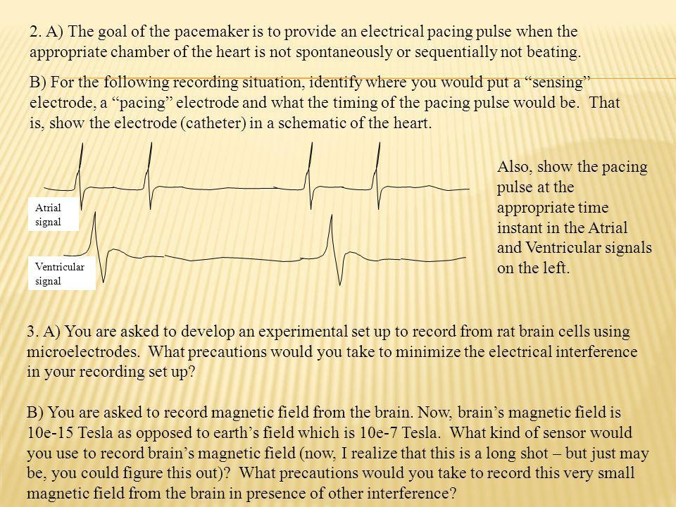 Atrial signal Ventricular signal 3. A) You are asked to develop an experimental set up to record from rat brain cells using microelectrodes. What prec
