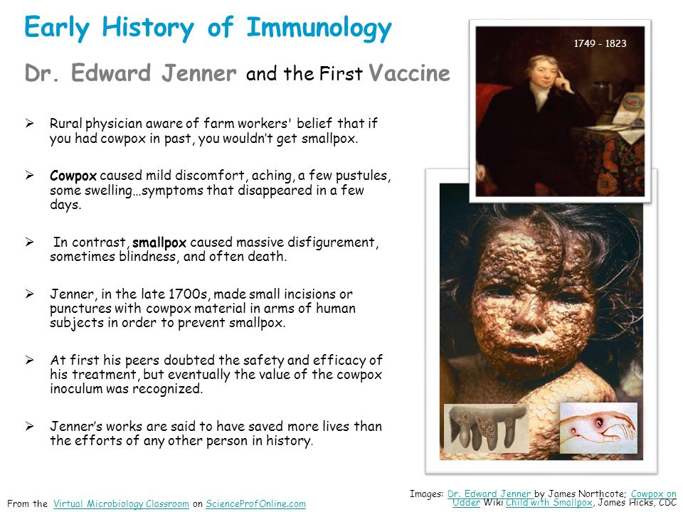 Early History of Immunology Dr. Edward Jenner and the First Vaccine Rural physician aware of farm workers' belief that if you had cowpox in past, you