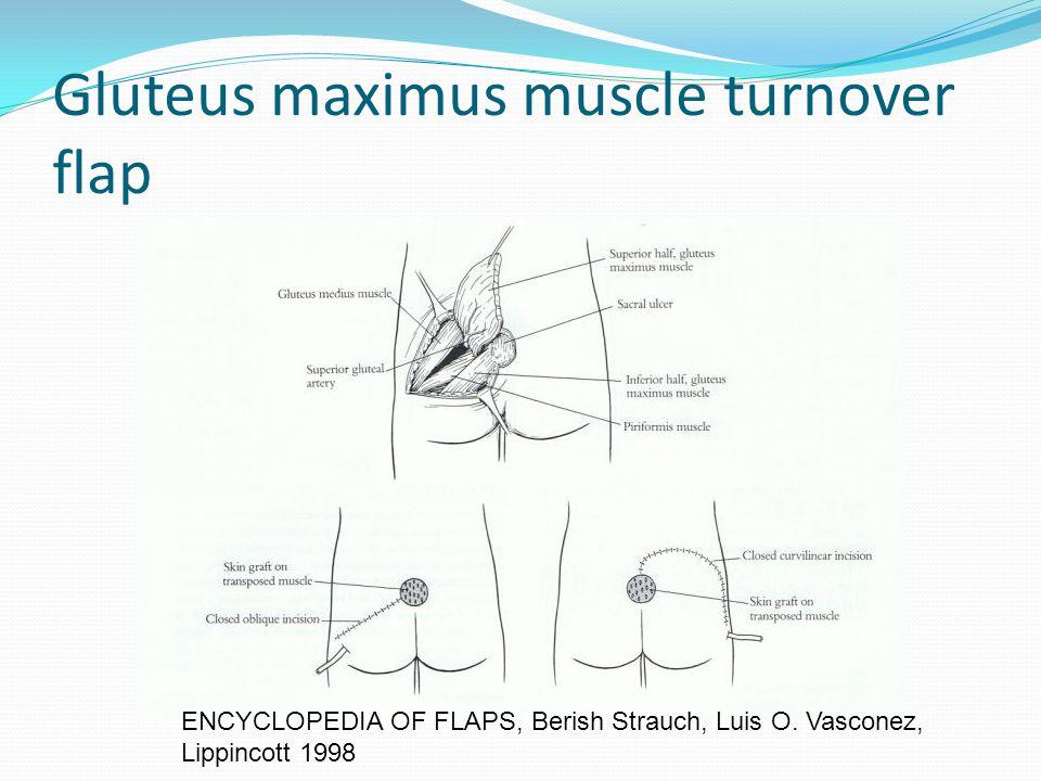 Gluteus maximus muscle turnover flap ENCYCLOPEDIA OF FLAPS, Berish Strauch, Luis O. Vasconez, Lippincott 1998