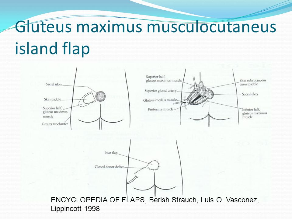 Gluteus maximus musculocutaneus island flap ENCYCLOPEDIA OF FLAPS, Berish Strauch, Luis O. Vasconez, Lippincott 1998