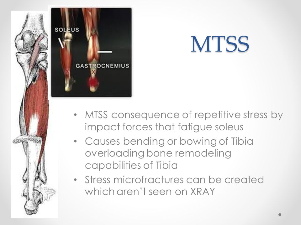 MTSS MTSS consequence of repetitive stress by impact forces that fatigue soleus Causes bending or bowing of Tibia overloading bone remodeling capabili