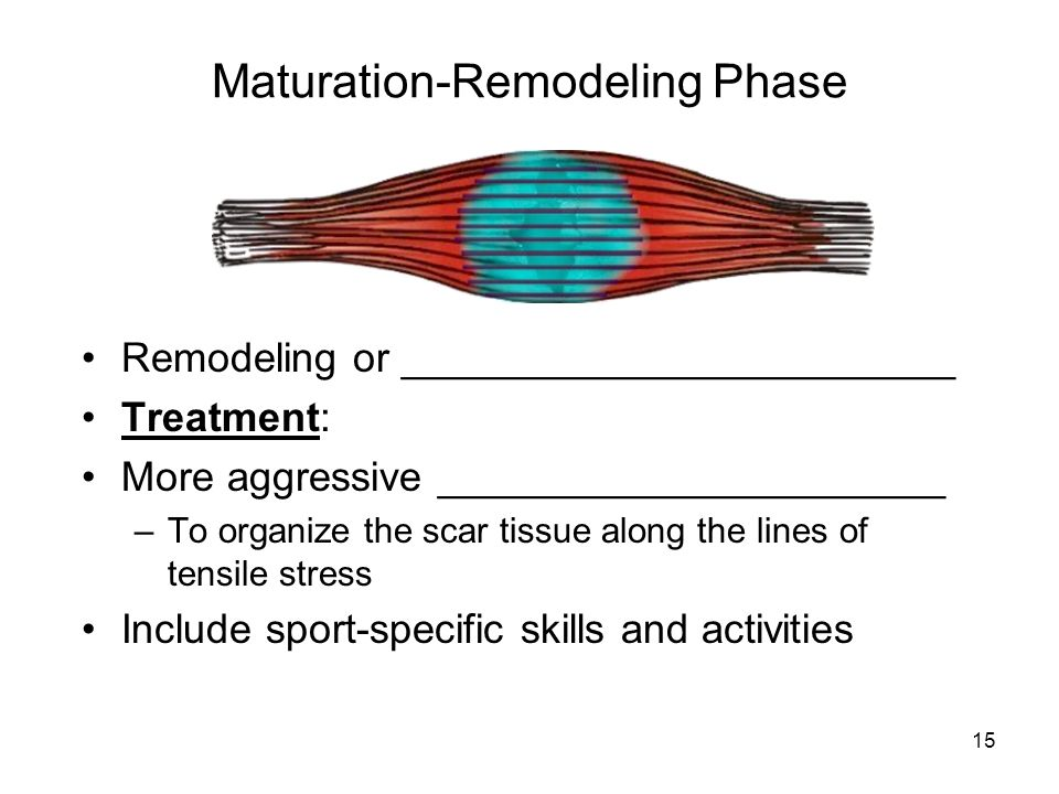 15 Maturation-Remodeling Phase Remodeling or ________________________ Treatment: More aggressive ______________________ –To organize the scar tissue a