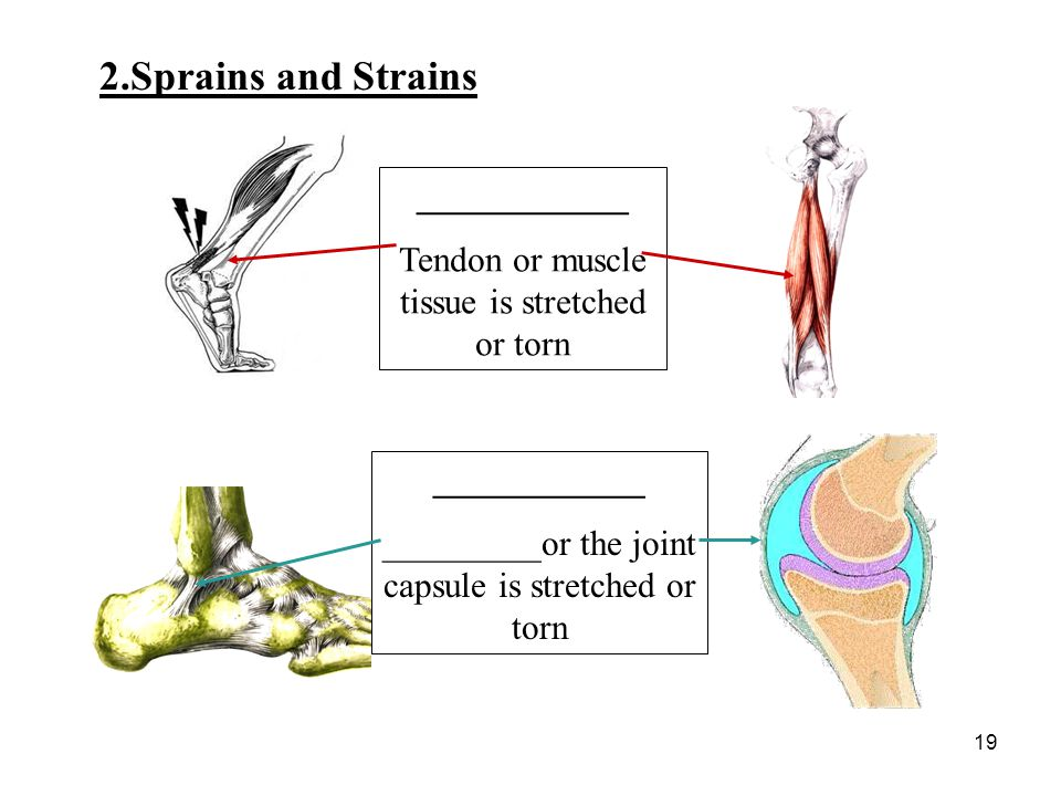 19 ____________ Tendon or muscle tissue is stretched or torn ____________ _________or the joint capsule is stretched or torn 2.Sprains and Strains