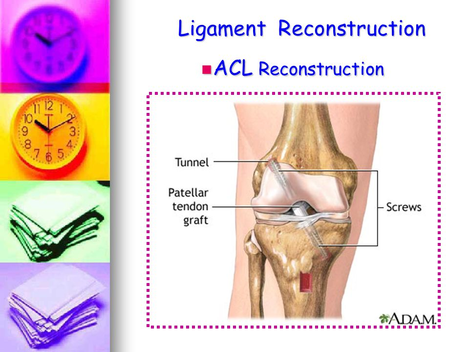 Ligament Reconstruction ACL Reconstruction ACL Reconstruction