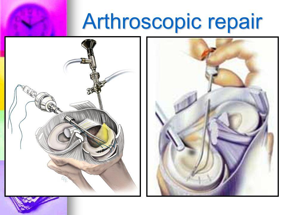 Arthroscopic repair