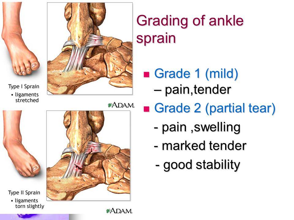 Grading of ankle sprain Grade 1 (mild) – pain,tender Grade 1 (mild) – pain,tender Grade 2 (partial tear) Grade 2 (partial tear) - pain,swelling - pain