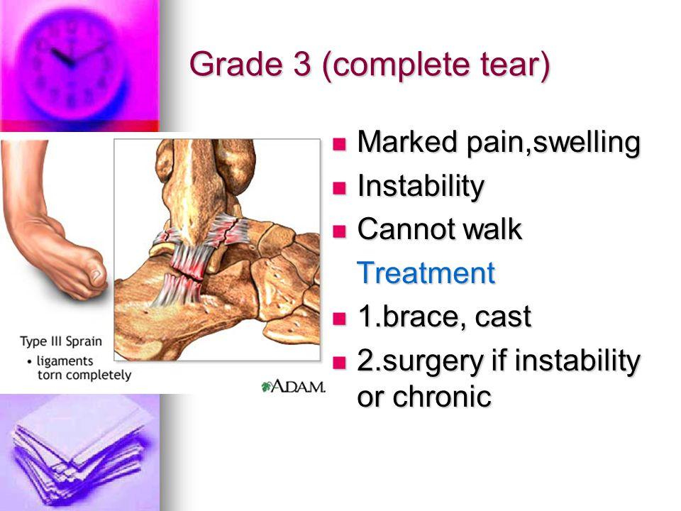 Grade 3 (complete tear) Marked pain,swelling Marked pain,swelling Instability Instability Cannot walk Cannot walk Treatment Treatment 1.brace, cast 1.