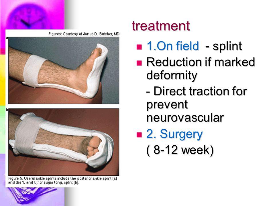 treatment 1.On field - splint 1.On field - splint Reduction if marked deformity Reduction if marked deformity - Direct traction for prevent neurovascu