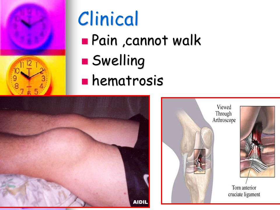 Clinical Pain,cannot walk Pain,cannot walk Swelling Swelling hematrosis hematrosis
