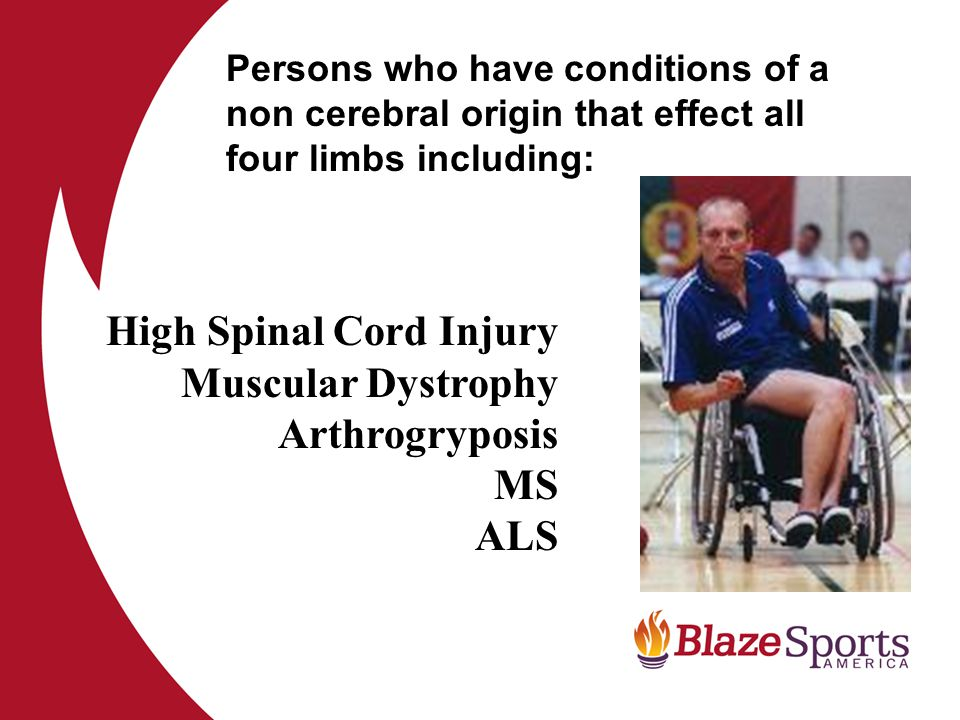High Spinal Cord Injury Muscular Dystrophy Arthrogryposis MS ALS Persons who have conditions of a non cerebral origin that effect all four limbs including: