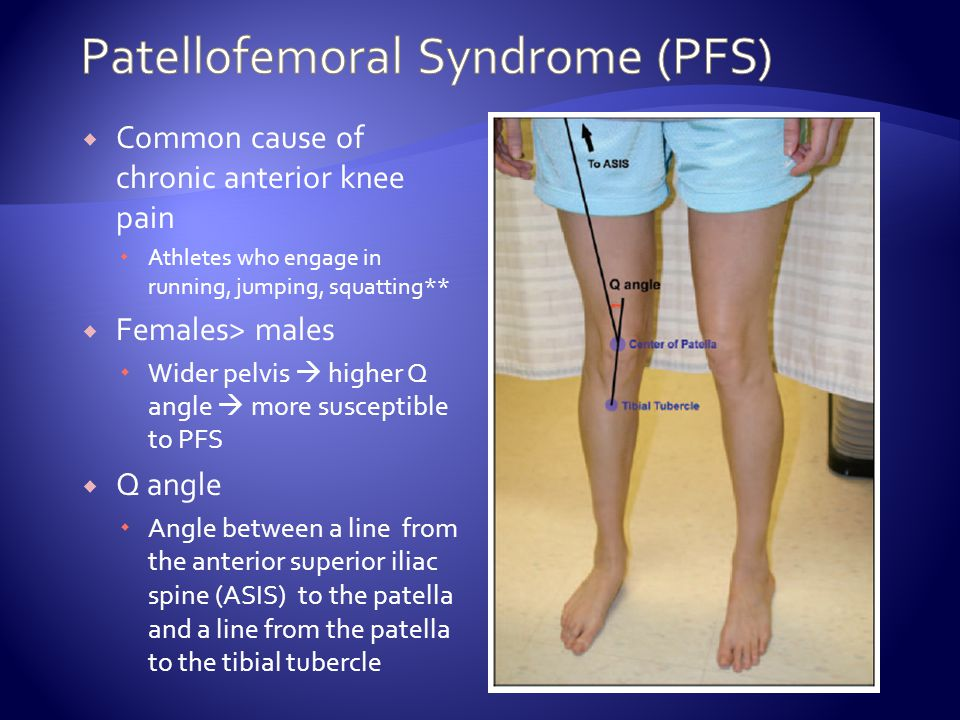 Common cause of chronic anterior knee pain Athletes who engage in running, jumping, squatting** Females> males Wider pelvis higher Q angle more susceptible to PFS Q angle Angle between a line from the anterior superior iliac spine (ASIS) to the patella and a line from the patella to the tibial tubercle