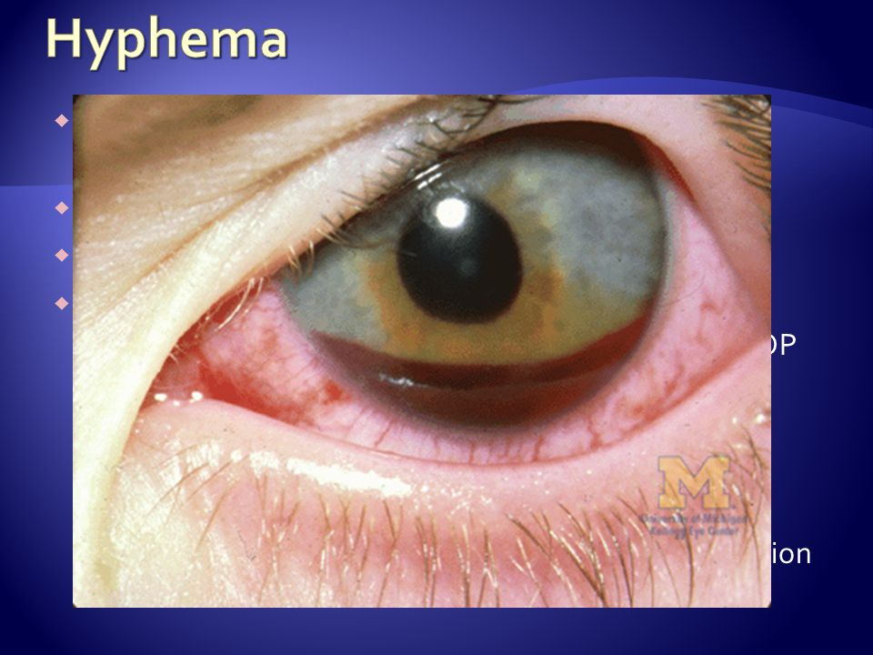 Collection of blood in the anterior chamber of the eye between the iris and the cornea Visual disturbances, photophobia, eye pain Nausea, vomiting, lethargy Treatment Goals: Prevent rebleeding and prevent increased IOP Consult Ophtho (this is an emergency) Protective eye SHIELD (not occlusive dressing) Recumbent positioning – head at 30-45 o No medications into the eye Avoid NSAIDs for potential effects of platelet function