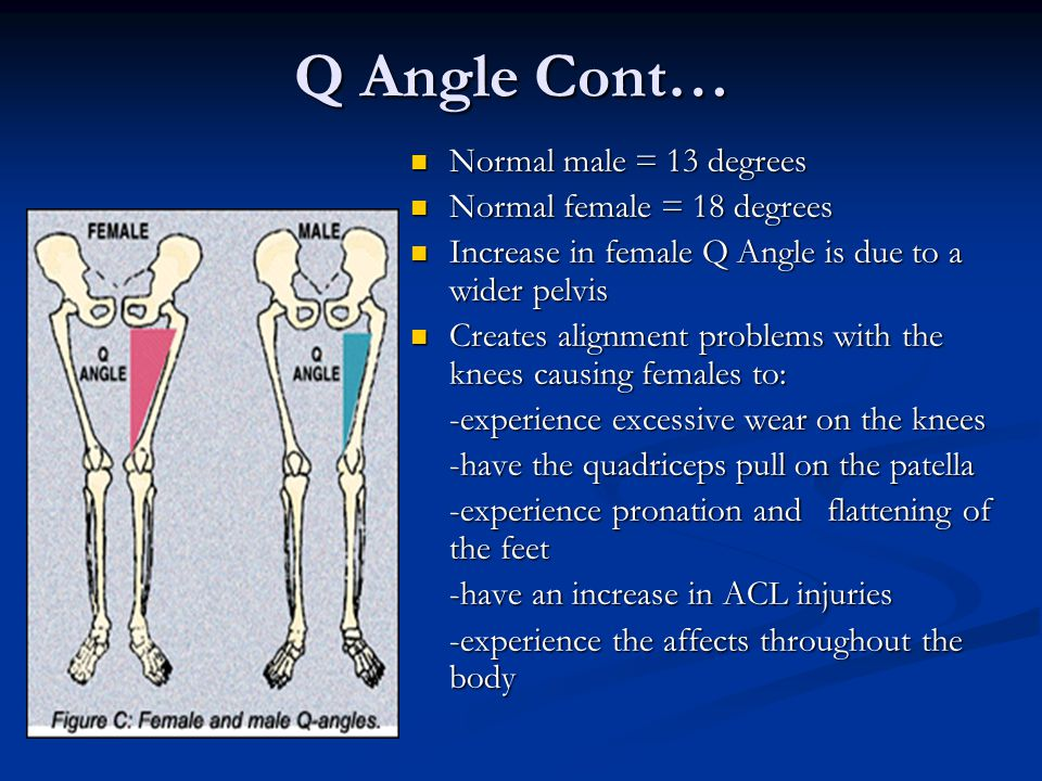 Q Angle Cont… Normal male = 13 degrees Normal female = 18 degrees Increase in female Q Angle is due to a wider pelvis Creates alignment problems with the knees causing females to: -experience excessive wear on the knees -have the quadriceps pull on the patella -experience pronation and flattening of the feet -have an increase in ACL injuries -experience the affects throughout the body