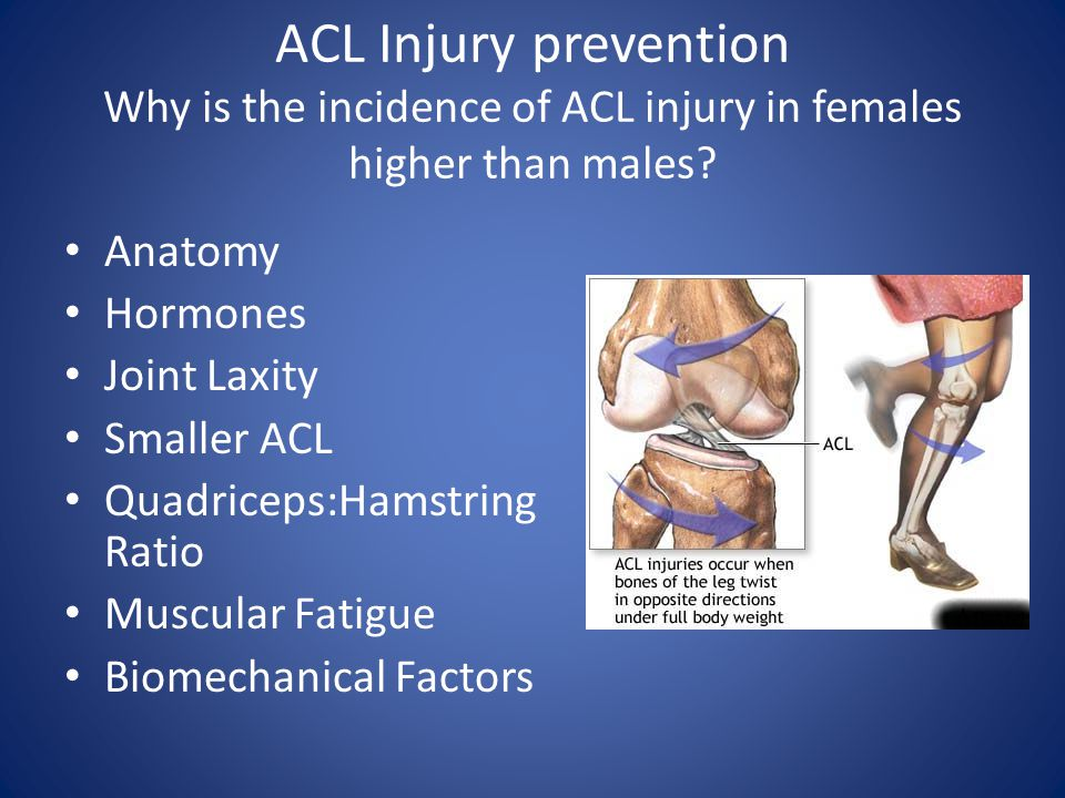 ACL Injury prevention Why is the incidence of ACL injury in females higher than males? Anatomy Hormones Joint Laxity Smaller ACL Quadriceps:Hamstring