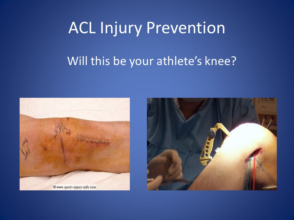 ACL Injury Prevention Basketball ACL Injury Soccer ACL Injury ABC News Story
