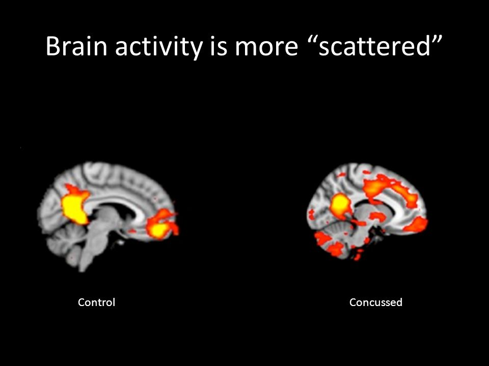 Brain activity is more scattered ControlConcussed
