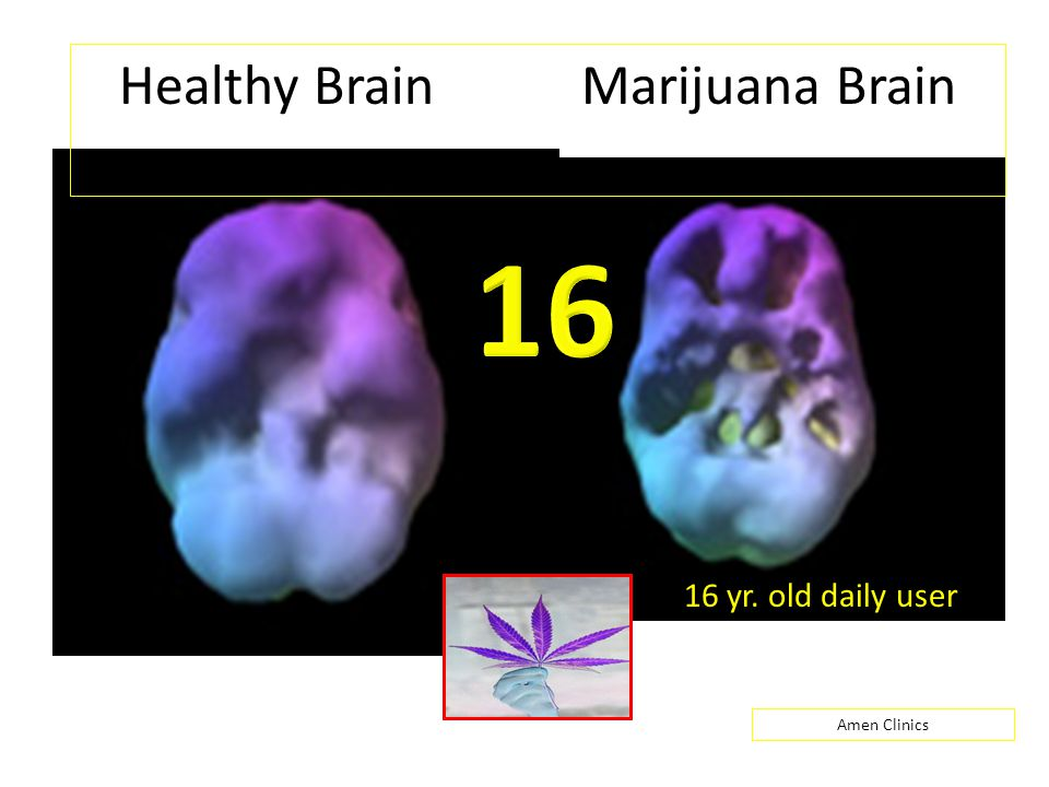 Healthy Brain Marijuana Brain Amen Clinics 16 yr. old daily user