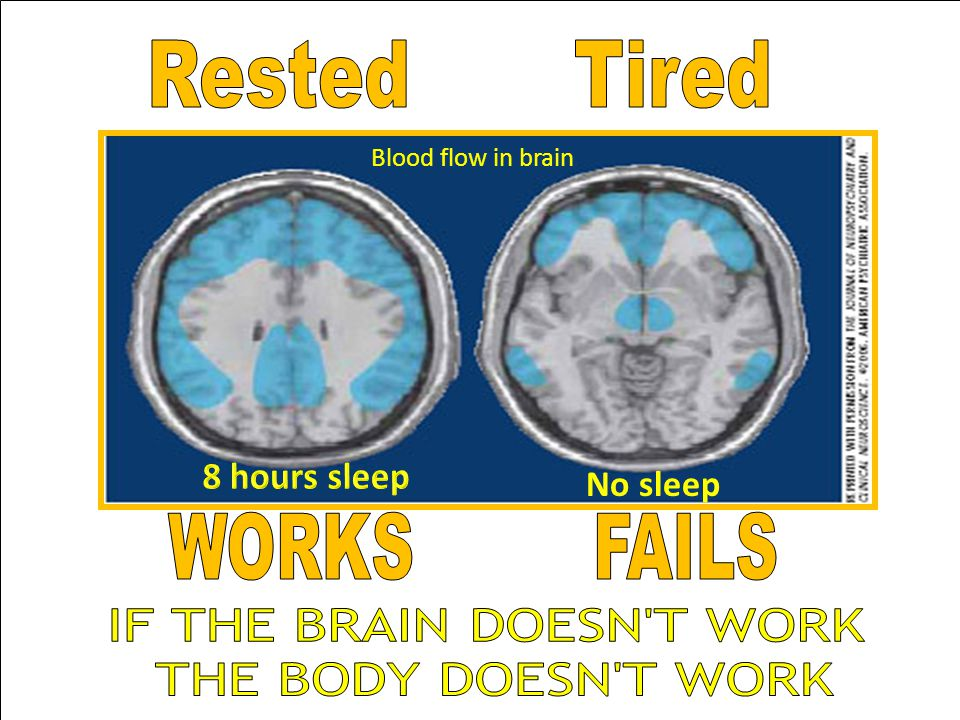 Blood flow in brain No sleep