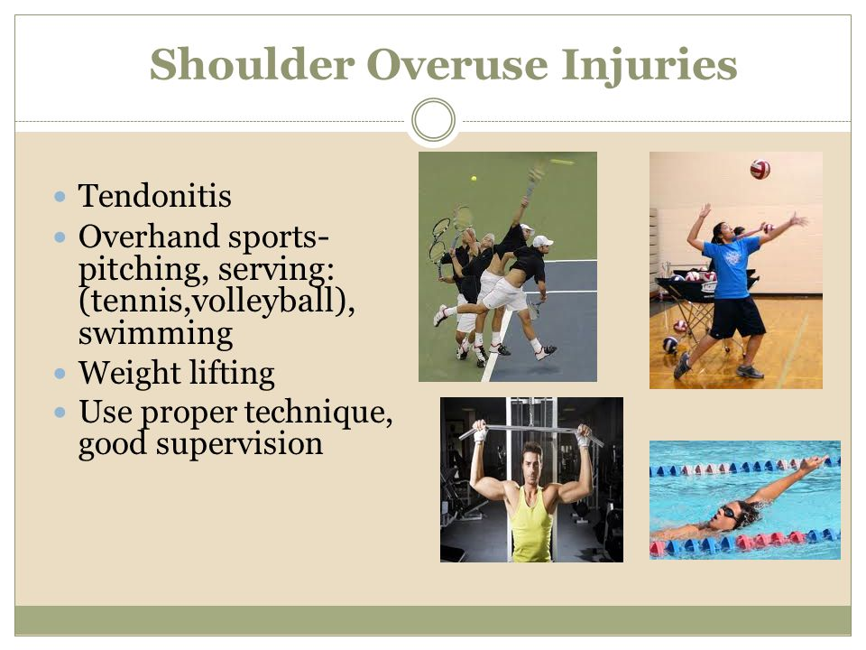 Shoulder Overuse Injuries Tendonitis Overhand sports - pitching, serving: (tennis,volleyball), swimming Weight lifting Use proper technique, good supe