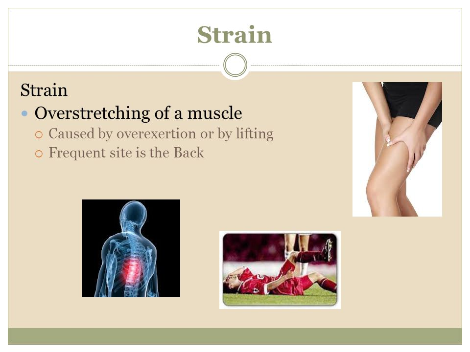 Strain Overstretching of a muscle Caused by overexertion or by lifting Frequent site is the Back