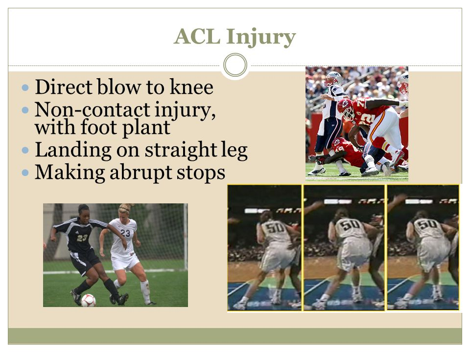 ACL Injury Direct blow to knee Non-contact injury, with foot plant Landing on straight leg Making abrupt stops