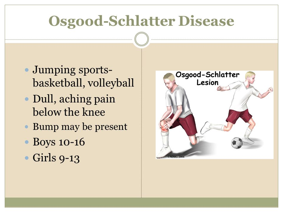 Osgood-Schlatter Disease Jumping sports- basketball, volleyball Dull, aching pain below the knee Bump may be present Boys 10-16 Girls 9-13