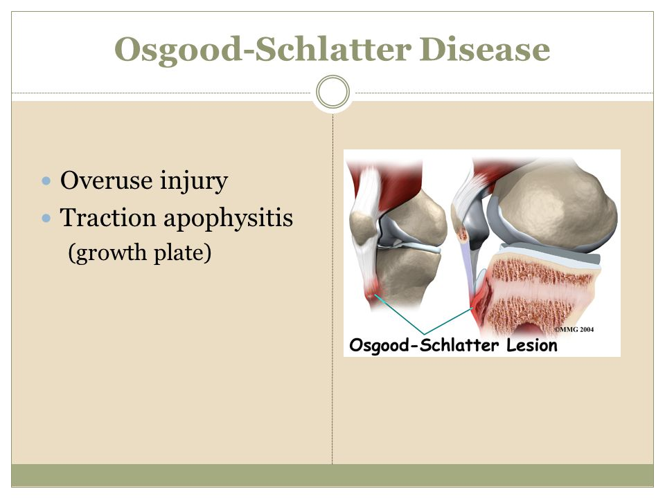 Osgood-Schlatter Disease Overuse injury Traction apophysitis (growth plate)