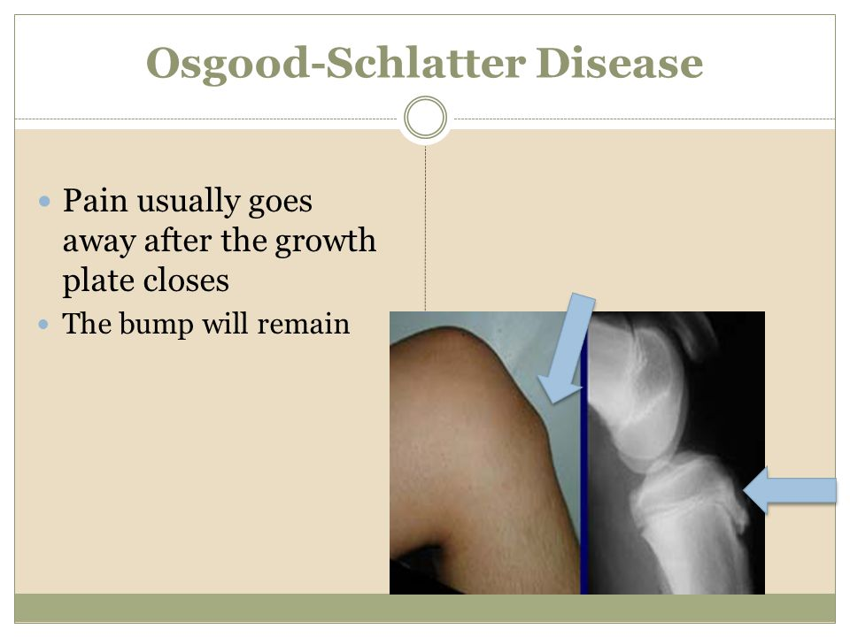 Osgood-Schlatter Disease Pain usually goes away after the growth plate closes The bump will remain