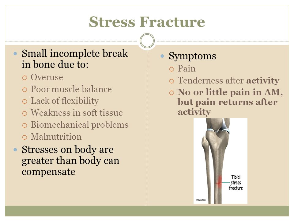 Stress Fracture Small incomplete break in bone due to: Overuse Poor muscle balance Lack of flexibility Weakness in soft tissue Biomechanical problems