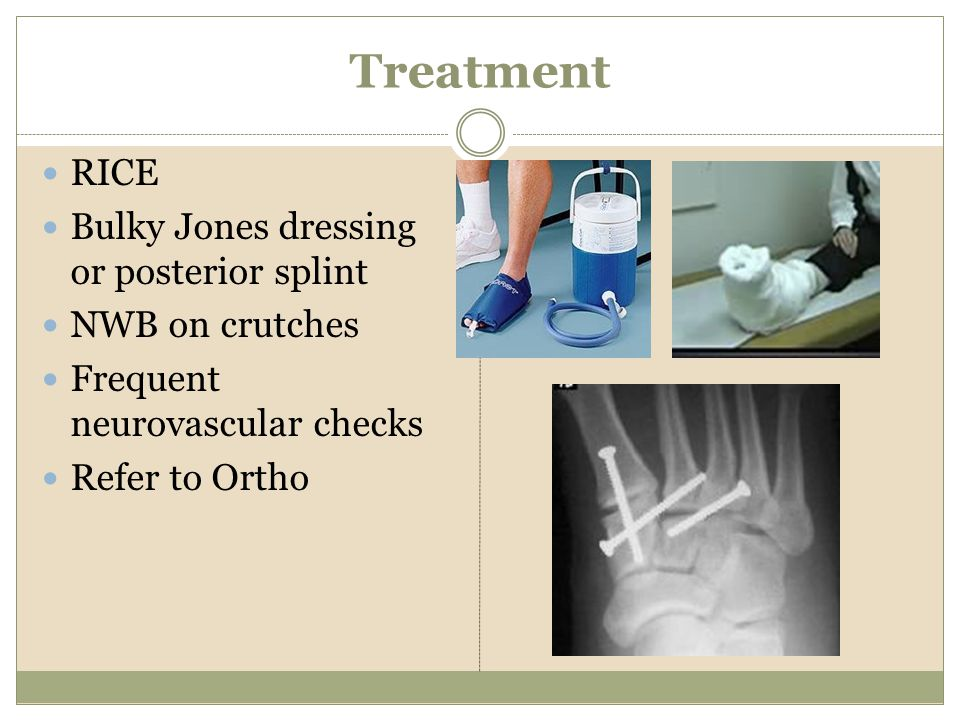Treatment RICE Bulky Jones dressing or posterior splint NWB on crutches Frequent neurovascular checks Refer to Ortho