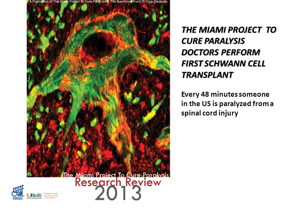 THE MIAMI PROJECT TO CURE PARALYSIS DOCTORS PERFORM FIRST SCHWANN CELL TRANSPLANT Every 48 minutes someone in the US is paralyzed from a spinal cord i