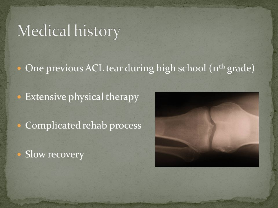 One previous ACL tear during high school (11 th grade) Extensive physical therapy Complicated rehab process Slow recovery