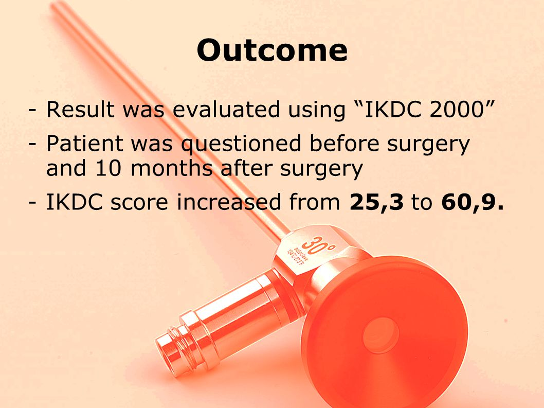 Outcome -Result was evaluated using IKDC 2000 -Patient was questioned before surgery and 10 months after surgery -IKDC score increased from 25,3 to 60,9.