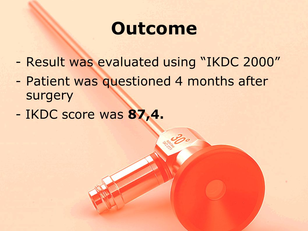 Outcome -Result was evaluated using IKDC 2000 -Patient was questioned 4 months after surgery - IKDC score was 87,4.
