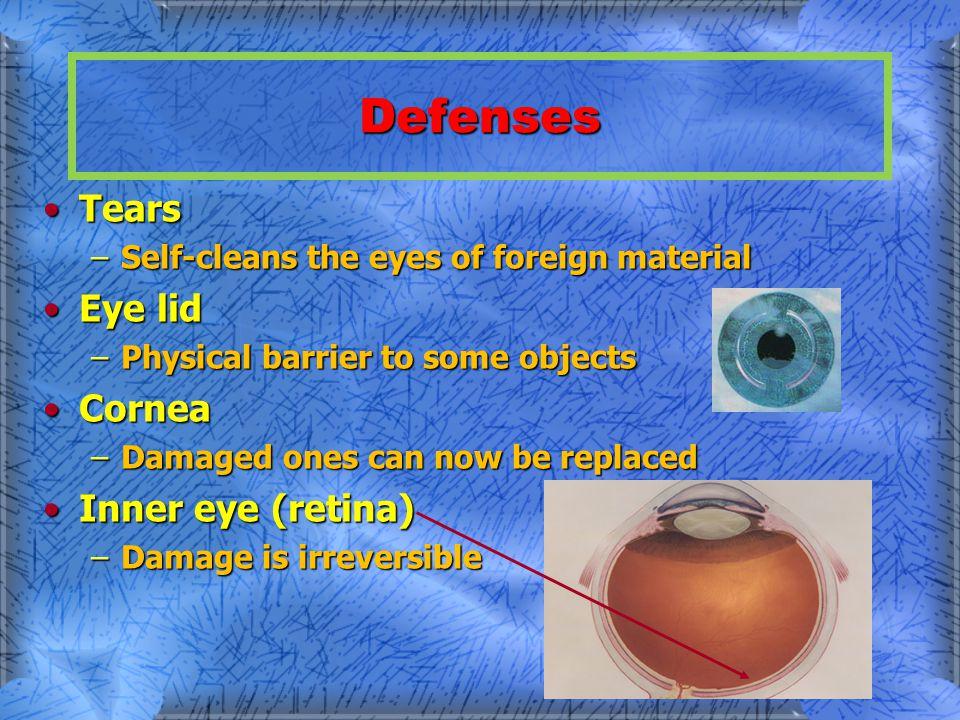 B. Types of Eye Injuries