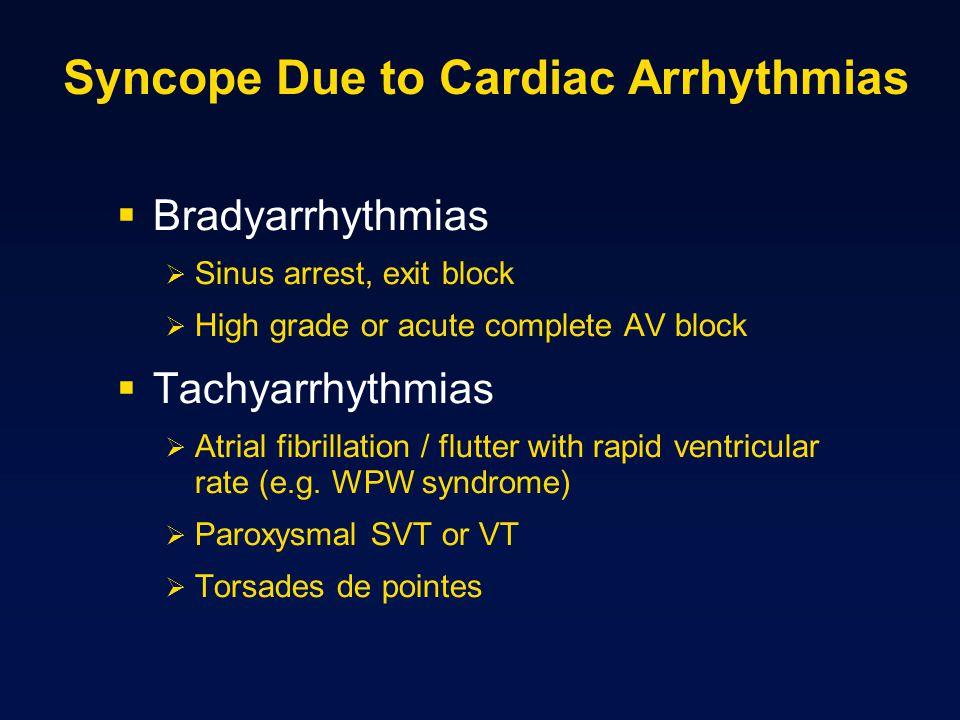 Syncope Due to Cardiac Arrhythmias Bradyarrhythmias Sinus arrest, exit block High grade or acute complete AV block Tachyarrhythmias Atrial fibrillatio