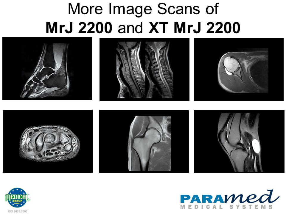 More Image Scans of MrJ 2200 and XT MrJ 2200